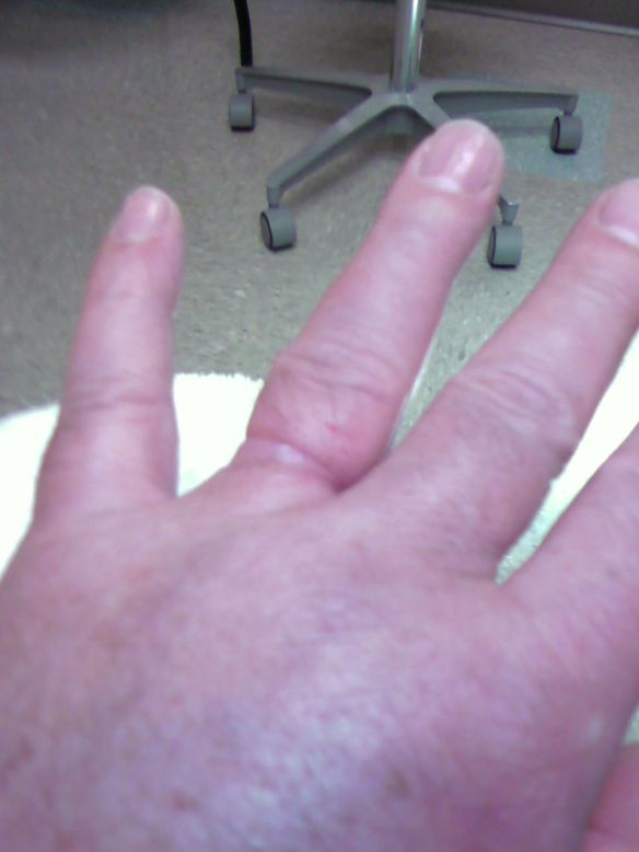 David's Swollen Hand and Ring Finger
